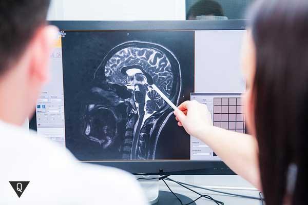 Врачи смотрят на снимок мозга