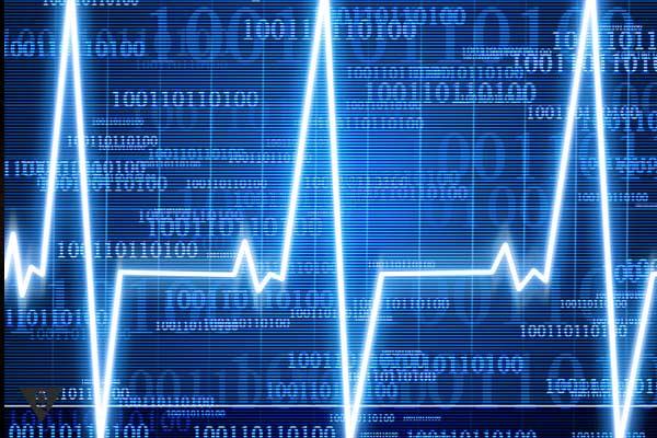 Электронная кардиограмма